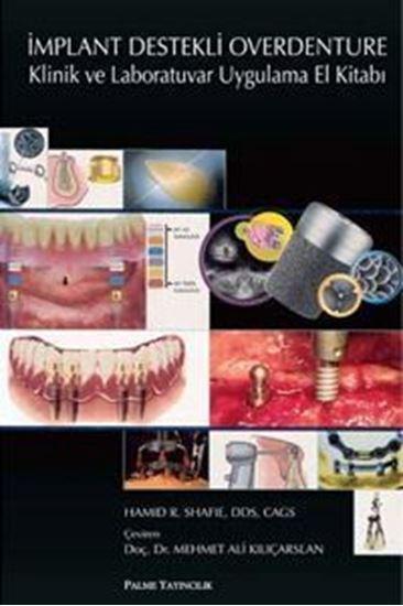 resm İmplant Destekli Overdenture Klinik ve Laboratuvar Uygulama El Kitabı