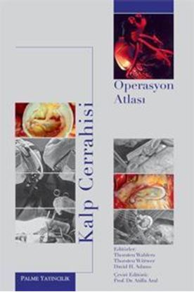 Resim Kalp Cerrahisi Operasyon Atlası