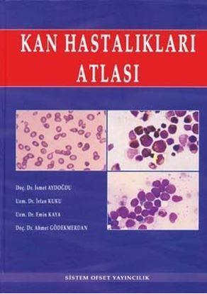 Resim Kan Hastalıkları Atlası